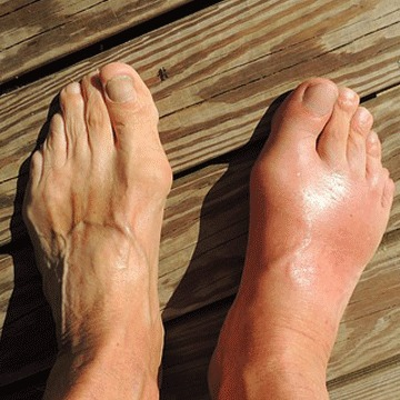 natural cure gout